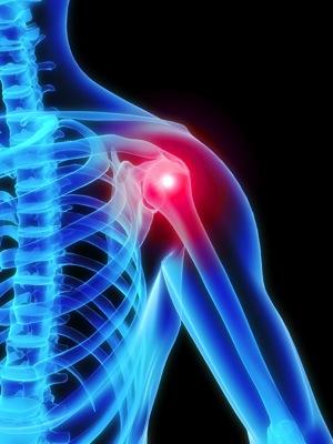 #135 肩の痛みが消えた経験から考えたこと