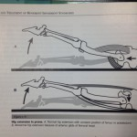 #33 股関節前部のつまり感:Femoral Anterior Glide Syndrome